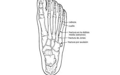 Rotura del ligamento cruzado anterior tratamiento y for Cuarto y quinto metatarsiano