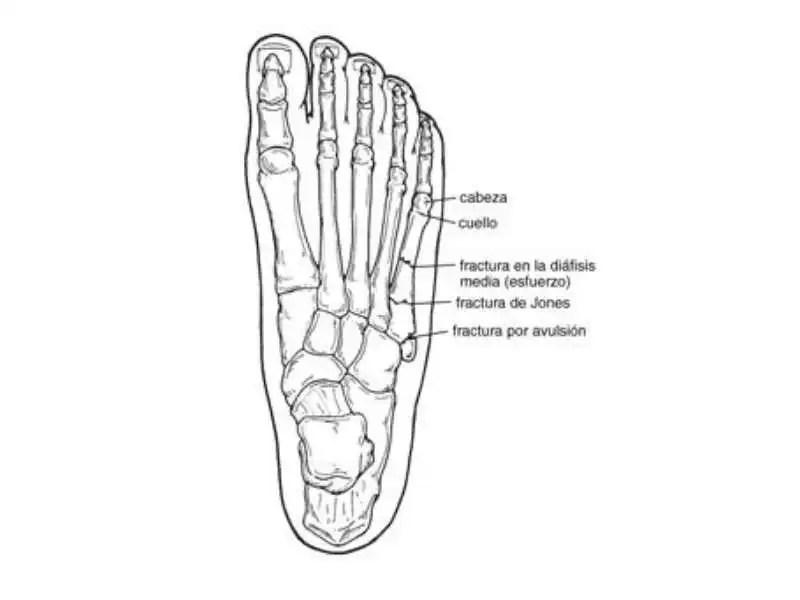 Fisioterapia deportiva: fracturas del quinto metatarsiano en ...