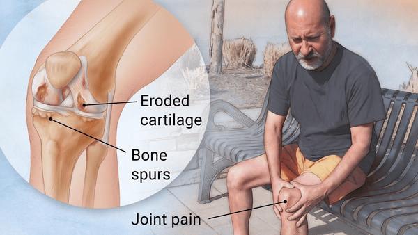 knee pain, osteoarthritis, arthritis, walking, pain