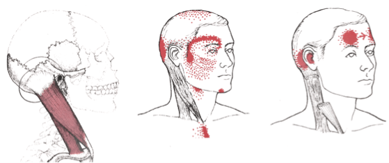 sternocleidomastoid, pain, referral, trigger point