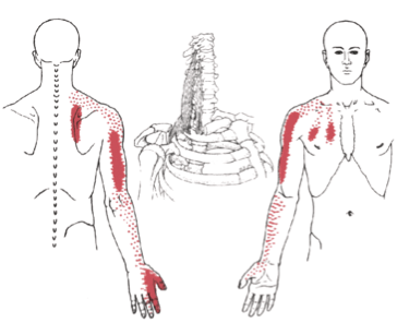 scalene, trigger point, referral, pain