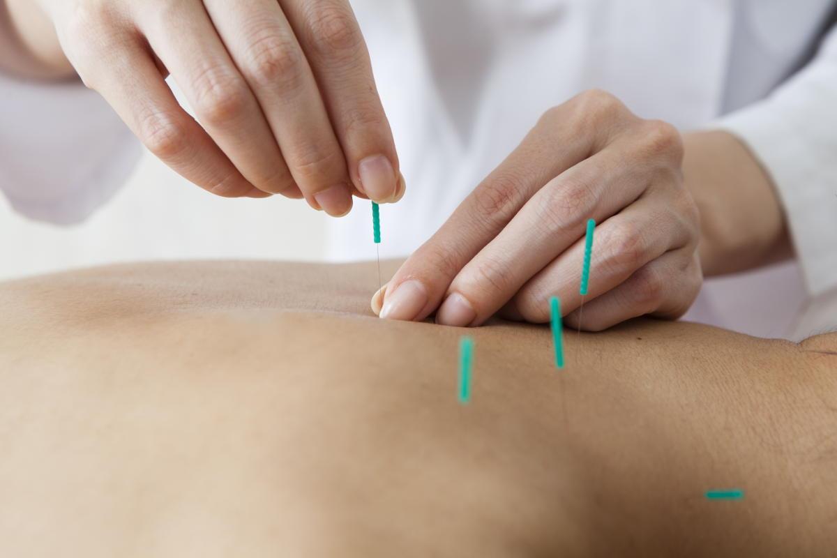 acupuncture in sw calgary