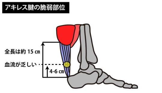 アキレス腱の脆弱部位