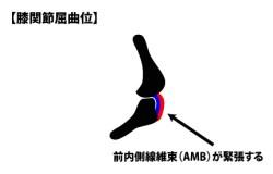 前内側線維束(AMB)