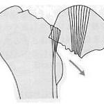 大腿骨頸部骨折,大腿骨転子部骨折,ガーデンの分類,転位,離開