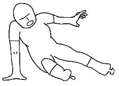 肘関節脱臼,受傷機転,スケート