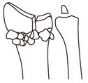AO分類,関節内骨折,C2,橈骨遠位端骨折