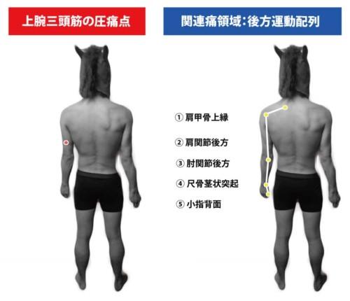 上腕三頭筋の圧痛点と関連痛領域