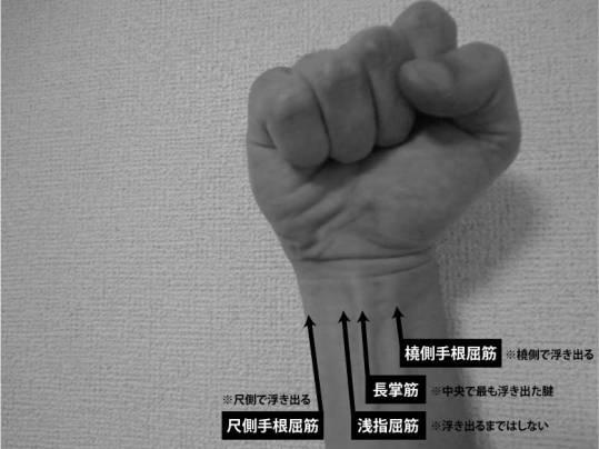 手首で浮き出ている腱の筋肉の種類|長掌筋