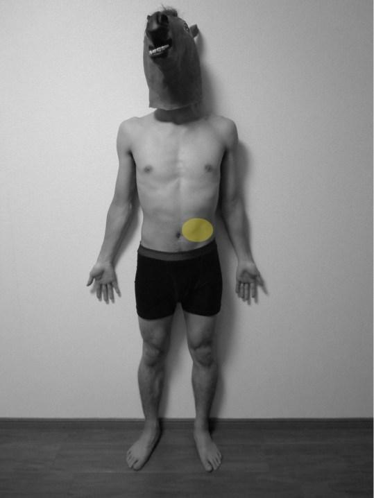 脊柱起立筋,トリガーポイント,関連痛,痛み,部位