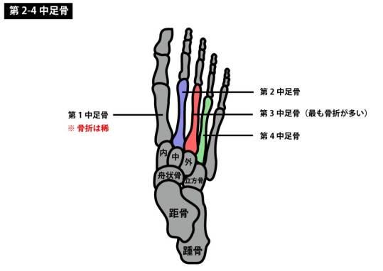 中足骨骨折|第三中足骨