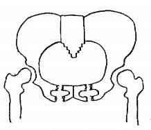 両側恥骨弓骨折,Conollyの重症度分類,重症