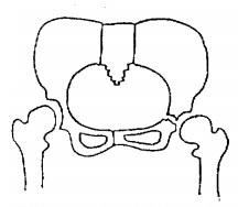 寛骨臼骨折,Conollyの重症度分類,重症