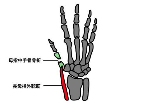 母指中手骨骨折