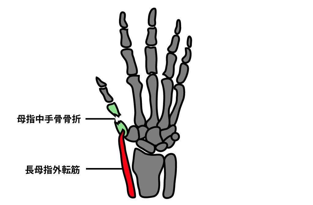 手指骨折のリハビリ治療