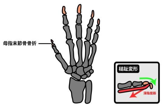 母指末節骨骨折