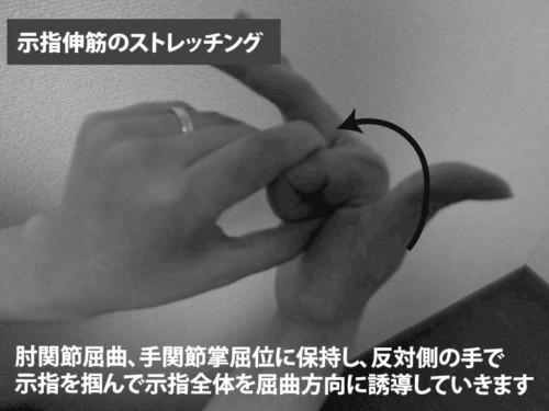 示指伸筋のストレッチング