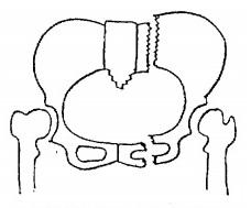 Malgajin骨折,骨盤骨折,種類,重症