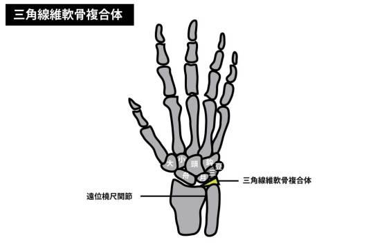 三角線維軟骨複合体(TFCC)損傷のリハビリ