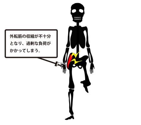 変形性股関節症|トレンデレンブルグ歩行②