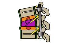 圧迫骨折|脊椎固定術