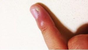 手首が痛い原因は炎症