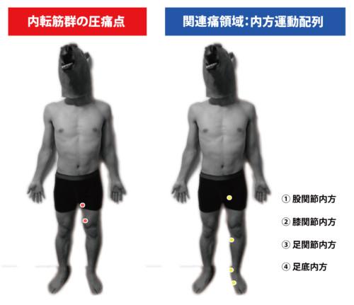 大内転筋の圧痛点と関連痛領域