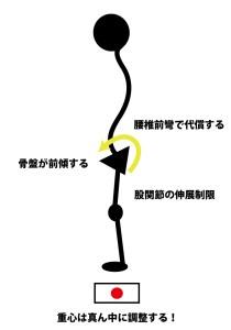 股関節伸展制限,骨盤前傾,腰椎前彎,重心