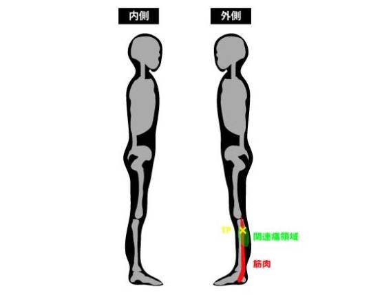 長腓骨筋のトリガーポイントと関連通領域