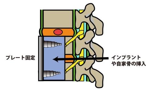 頸椎椎間板ヘルニアに対する前方固定術