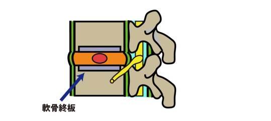脊椎|軟骨終板