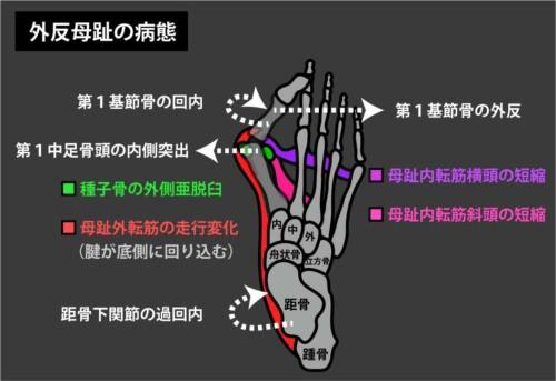 外反母趾と母趾外転筋