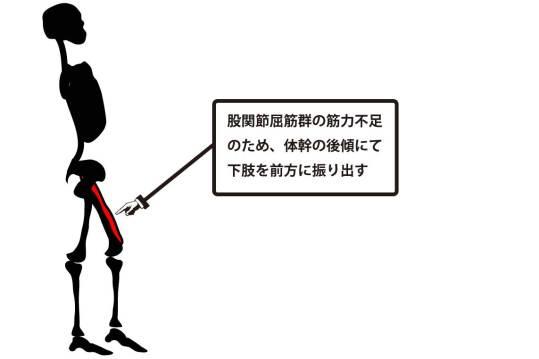 異常歩行|股関節屈筋群の筋力不足