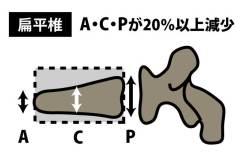 椎体骨折の圧潰の種類|扁平椎