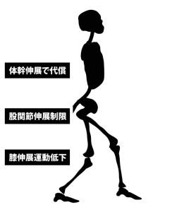 変形性股関節症|歩行姿勢|股関節伸展制限
