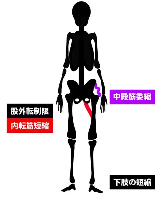 変形性股関節症|立位姿勢|正面