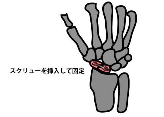 舟状骨骨折|舟状骨骨接合術|スクリュー固定