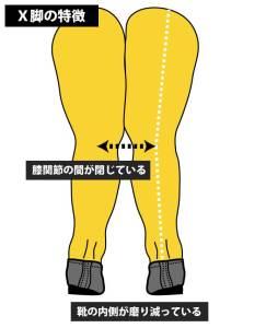 O脚とX脚の特徴と靴の選び方②