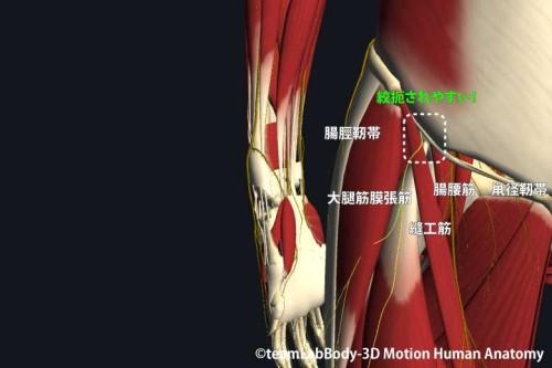 大腿外側皮神経の絞扼部