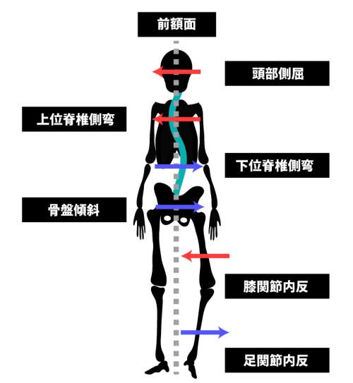 姿勢分析と運動連鎖|前額面