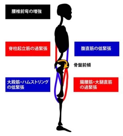 腰椎前弯の増強