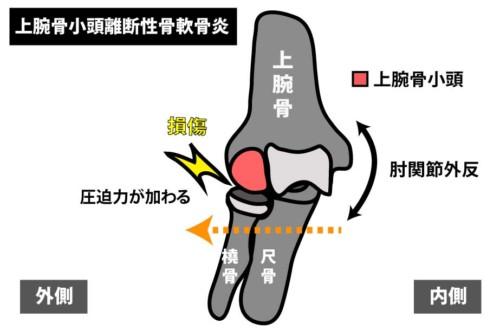 肘関節外側の痛み|上腕骨小頭離断性骨軟骨炎