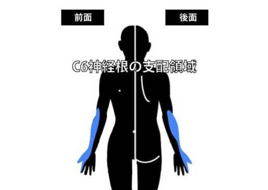 肘関節外側の痛み|C6神経根の圧迫
