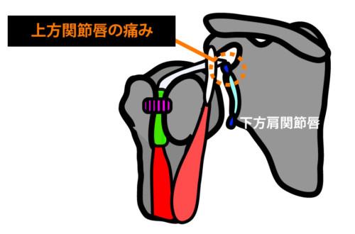 肩関節前方の痛み:上方関節唇の損傷