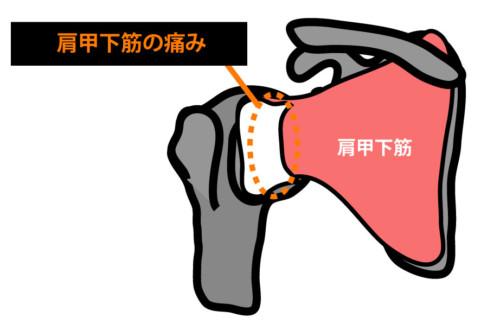 肩関節前方の痛み:肩甲下筋の攣縮