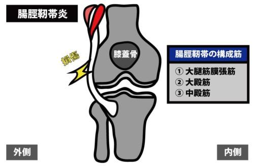 膝関節外側の痛み|腸脛靭帯炎1
