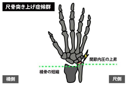 尺骨突き上げ症候群1