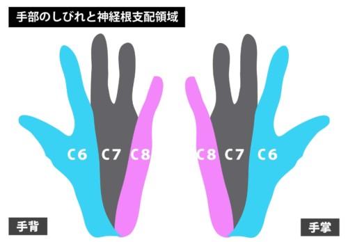 手部のしびれと神経根支配領域