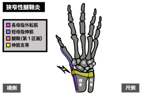 狭窄性腱鞘炎