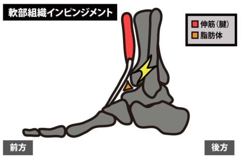 足関節前方の痛み|軟部組織のインピンジメント